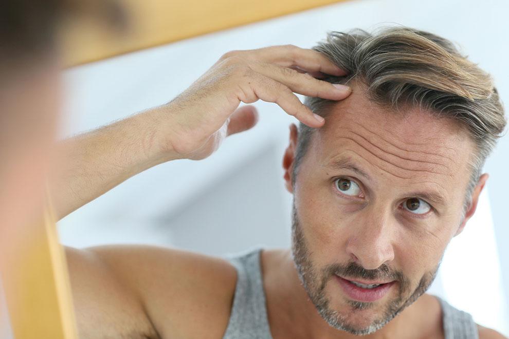 erkeklerde saç dökülmesine doğal çözüm